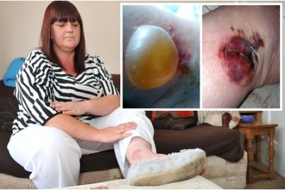 Spider bite | During her stay the blister expanded to the size of a golf ball. (Image | This Is Hull And East Riding)